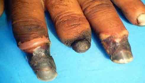 Tobacco Causes Buerger's Disease