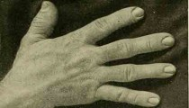 Acromegaly Drug Today Medical Times