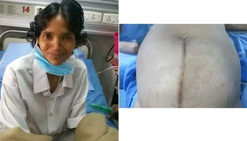 Largest-ever tumour removed from the abdomen of woman at AIIMS