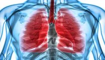 Pulmonary Fibrosis- Drug Today Medical Times